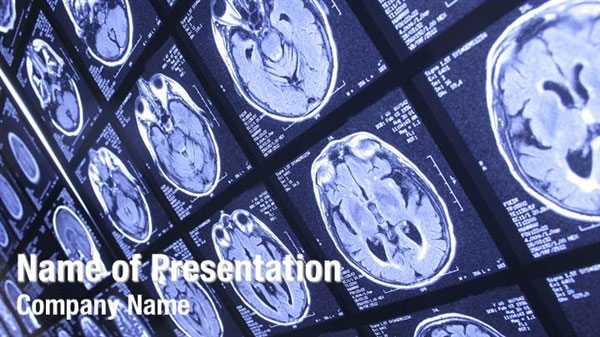 X Rays Powerpoint Templates X Rays Powerpoint Backgrounds Templates For Powerpoint Presentation Templates Powerpoint Themes